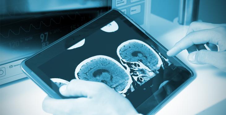 Telestroke - stroke care with technology